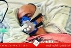 رام الله: است-شهاد الأس-ير المحرر حسين مسالمة نتيجة للإهمال الطبي في سجون الاحتلال