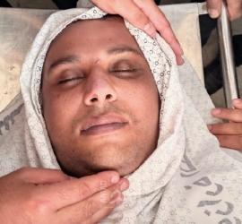 """استشهاد """"مؤيد حمدان"""" متأثراً بإصابته خلال العدوان على غزة"""
